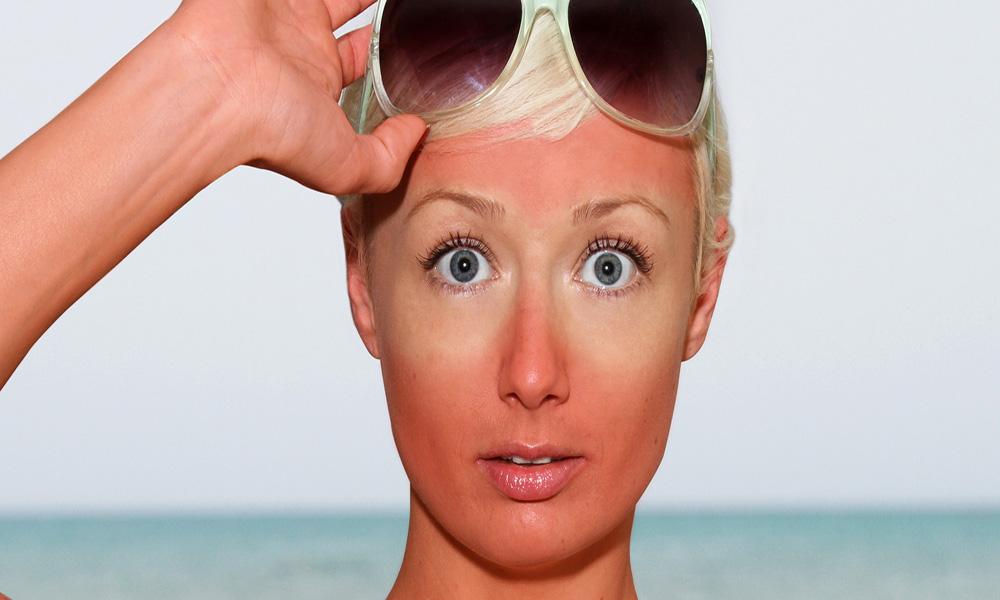 اثرات زیان بار نور خورشید, تابش نور آفتاب, استرس های آسیب زا, چروکیدگی پوست, اختلالات پیگمانی, هیپوپیگمانتاسیون, اسیدهای نوکلئیک, سلول های بنیادی .