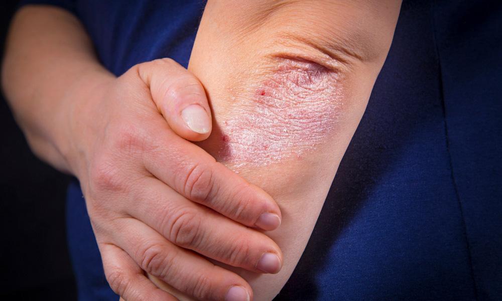 کاهش استرس, محصولات كازمتيک, کنترل بیماری پسوریازیس, بيماريهاي پوسـتي, سیگنالهای التهابی, تعریف کازمتیک, ماکروفاژها, پوسته ریزی بیش از حد .