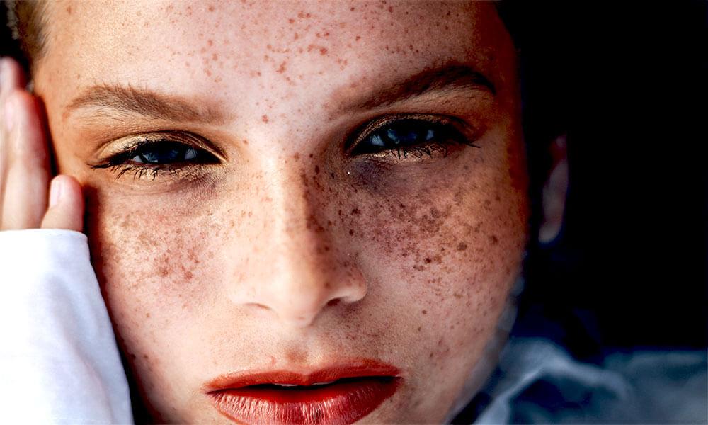 Photo of مروری کوتاه بر سه نوع لک پوستی شایع ؛ لک های آفتاب ، ملاسما ، لک بعد از التهاب پوستى