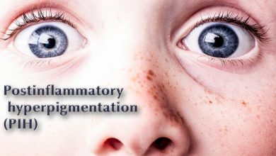 هایپرپیگمنتاسیون, هایپرپیگمنتیشن, لک بعد از التهاب, بثورات فوتوتوکسیک, ملانوزیز اپیدرمال, هایپرملانوزیز اپیدرمال, ملانوزیز درمال, درماتوز, درمان PIH .